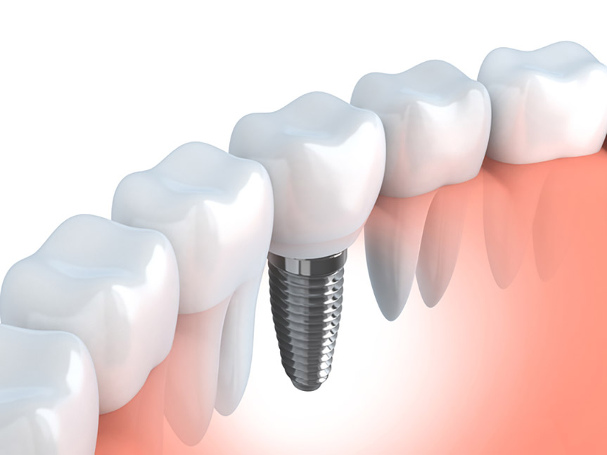 Dental Implants Car Accident in Staten Island