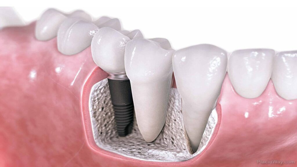 Dental Implants Car Accident in the Bronx NY