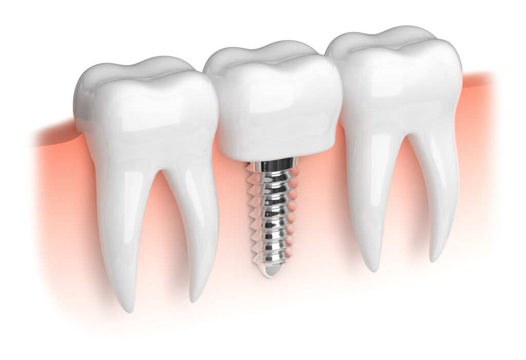 Dental Implants Car Accident NJ