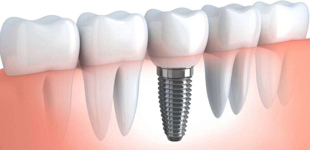 Dental Implants Car Accident NY